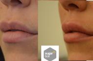 lips_right