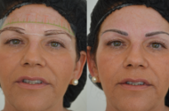 Before and after Semi Permanent Make Up Eyebrows