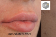 Before Immediately after and 2 weeks after Lip feminisation