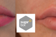 Front_lips