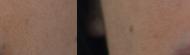 Blend_scars