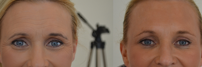 Botox 3 areas