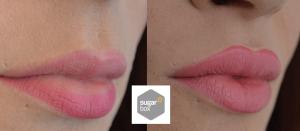 Lip Feminisation