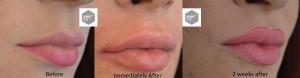 Transgender_lips