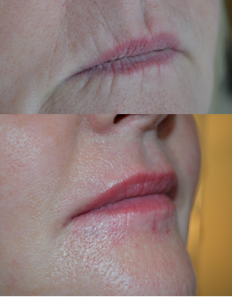 Lip border volumising