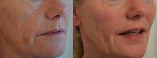 Before and after cheek filler