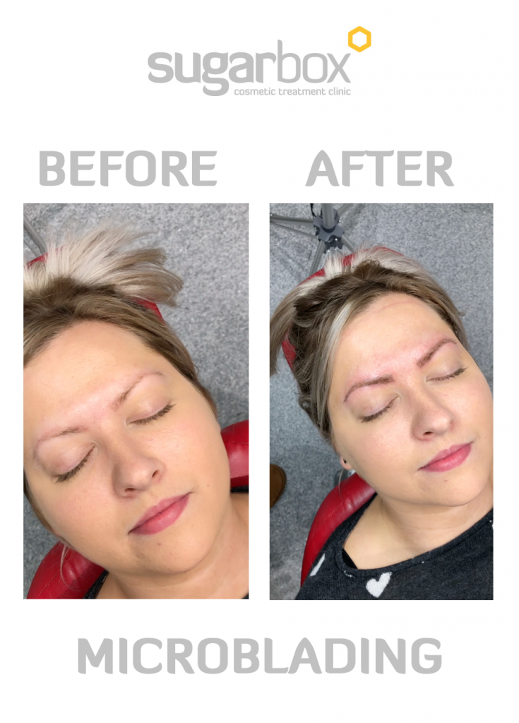 Before and after photo of Microblading Phi Brows