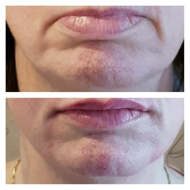 Dermal fillers before and after Sugar Box Clinic