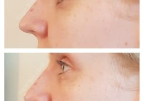 Nose Filler Non-Surgical Rhinoplasty